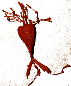 bandaged heart 14