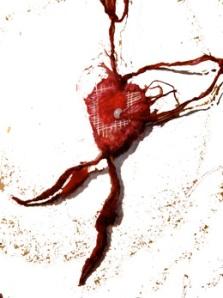 bandaged heart 2