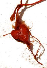bandaged heart 3