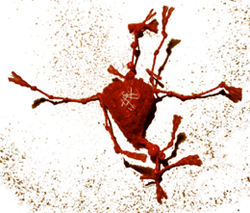 bandaged heart no66
