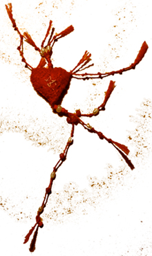 bandaged heart no95